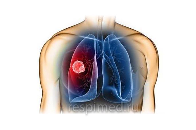 Застойная пневмония у человека