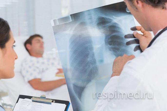 Проблемы лечения застойной пневмонии