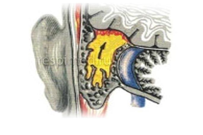 Почему развиваются внутричерепные осложнения