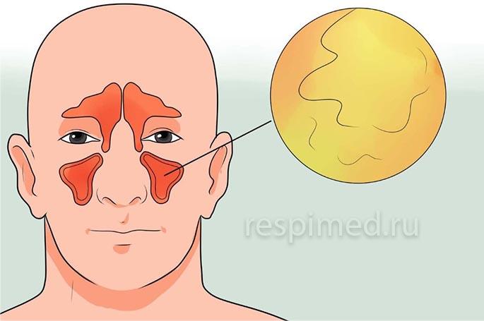 Сфеноидит - особенности и лечение