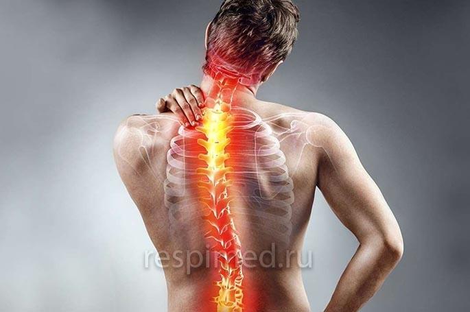 Развитие болей в спине