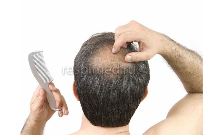 Почему выпадают волосы - причины
